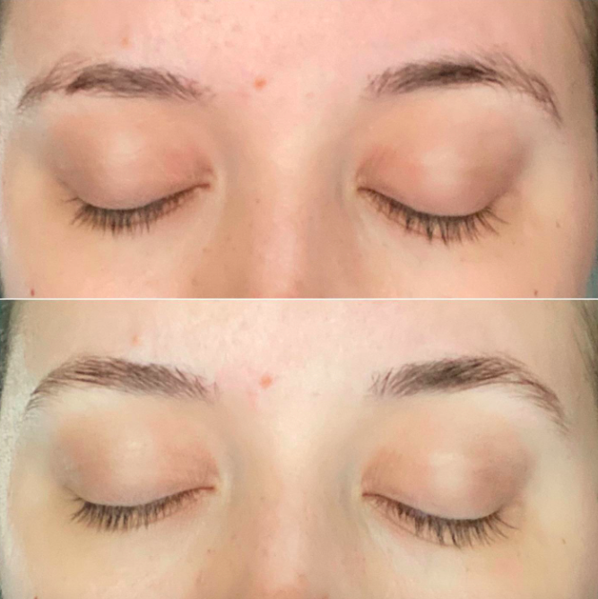A customer review photo of their eyebrows before and after using the NYX eyebrow gel