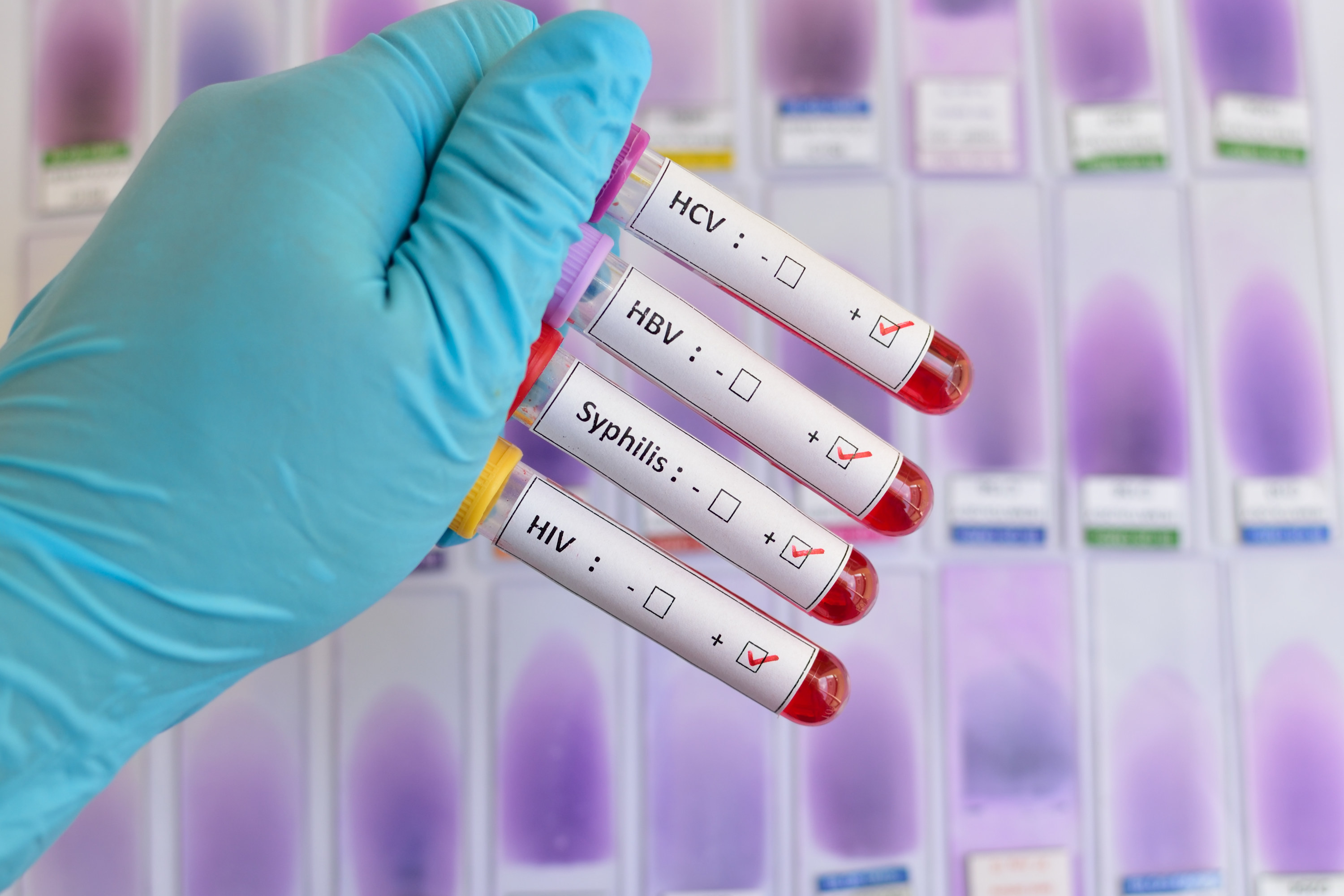 A stock image of a doctor holding up vials of blood for STD testing
