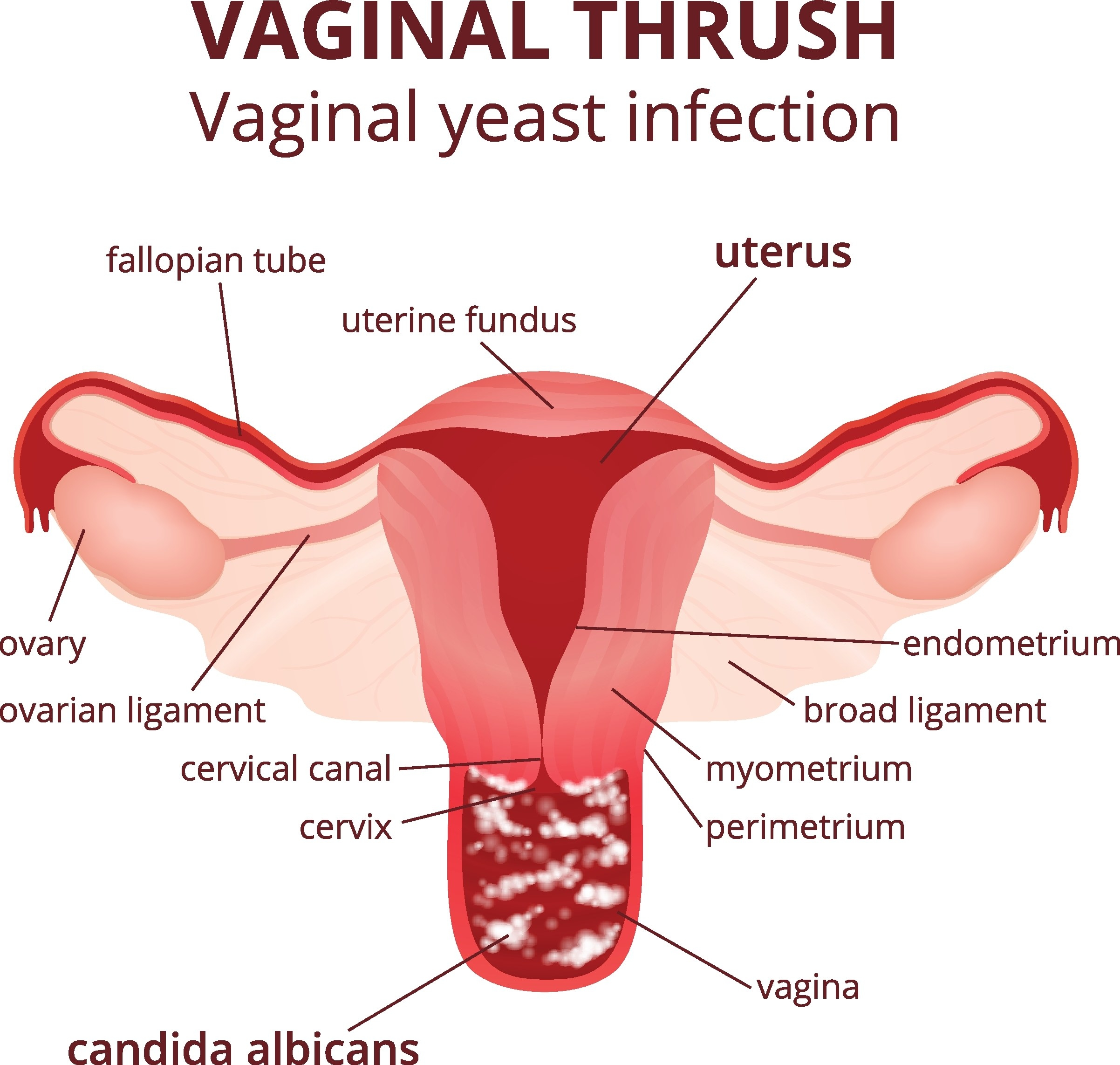 A stock image of a chart with the uterus