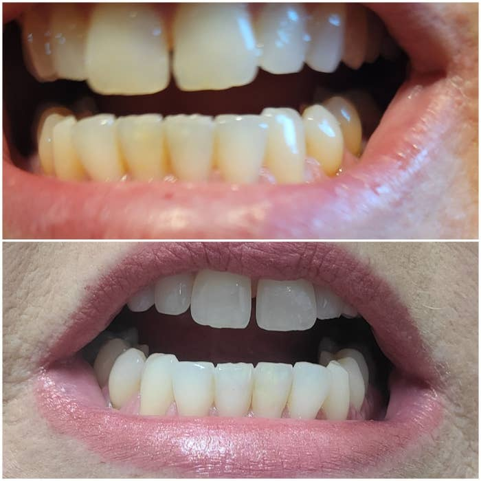 before and after of reviewer's yellow teeth, then cleaner whiter teeth after use