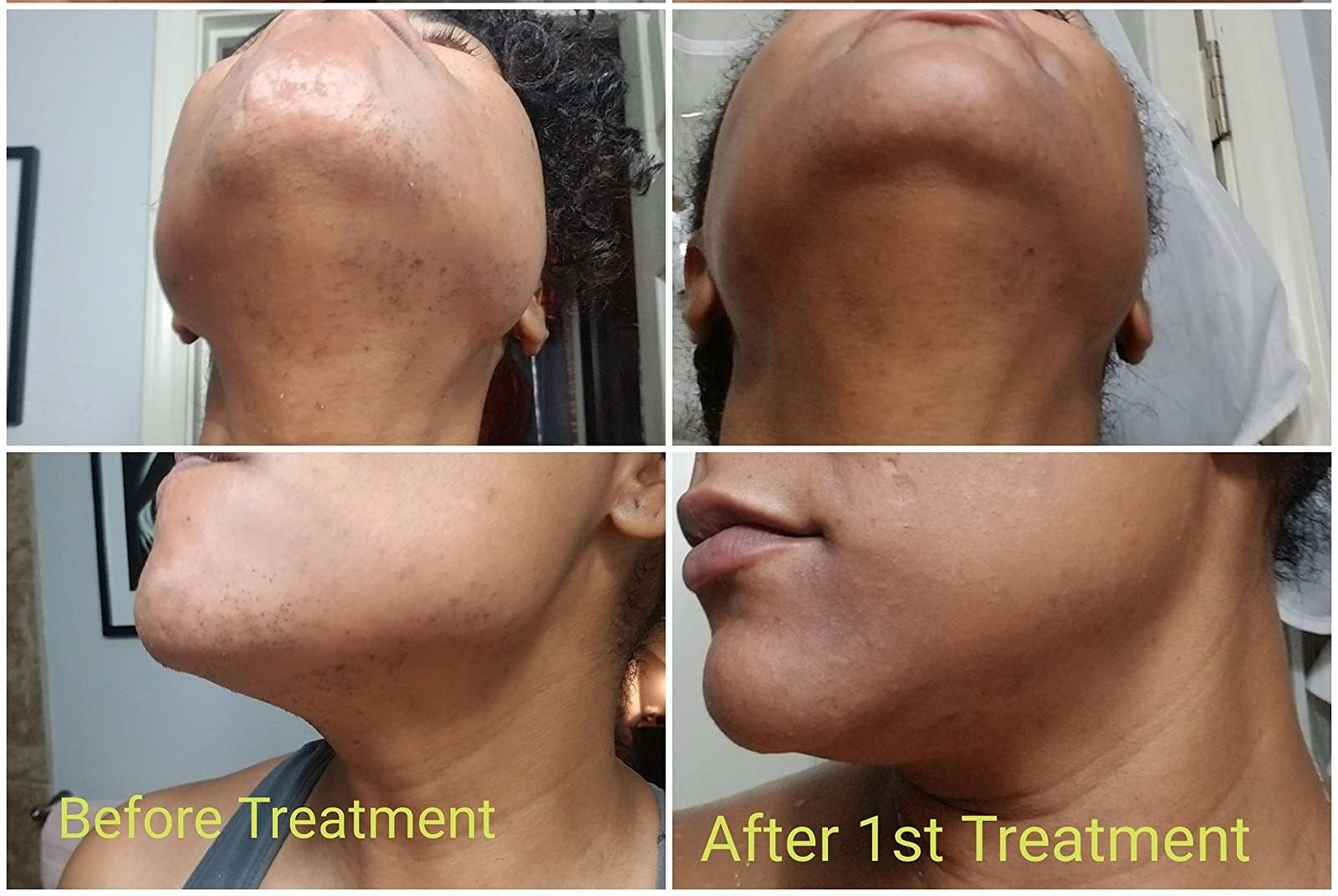Reviewer showing before-and-after results of using Mederna Scar Cream