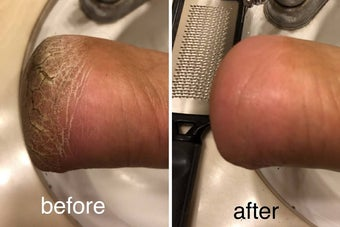 before and after photo for a foot file