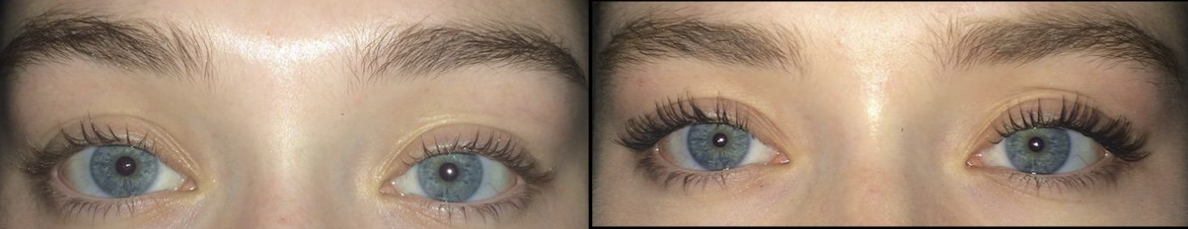A reviewer's lashes before using the mascara / A reviewer's fuller lashes after using the mascara