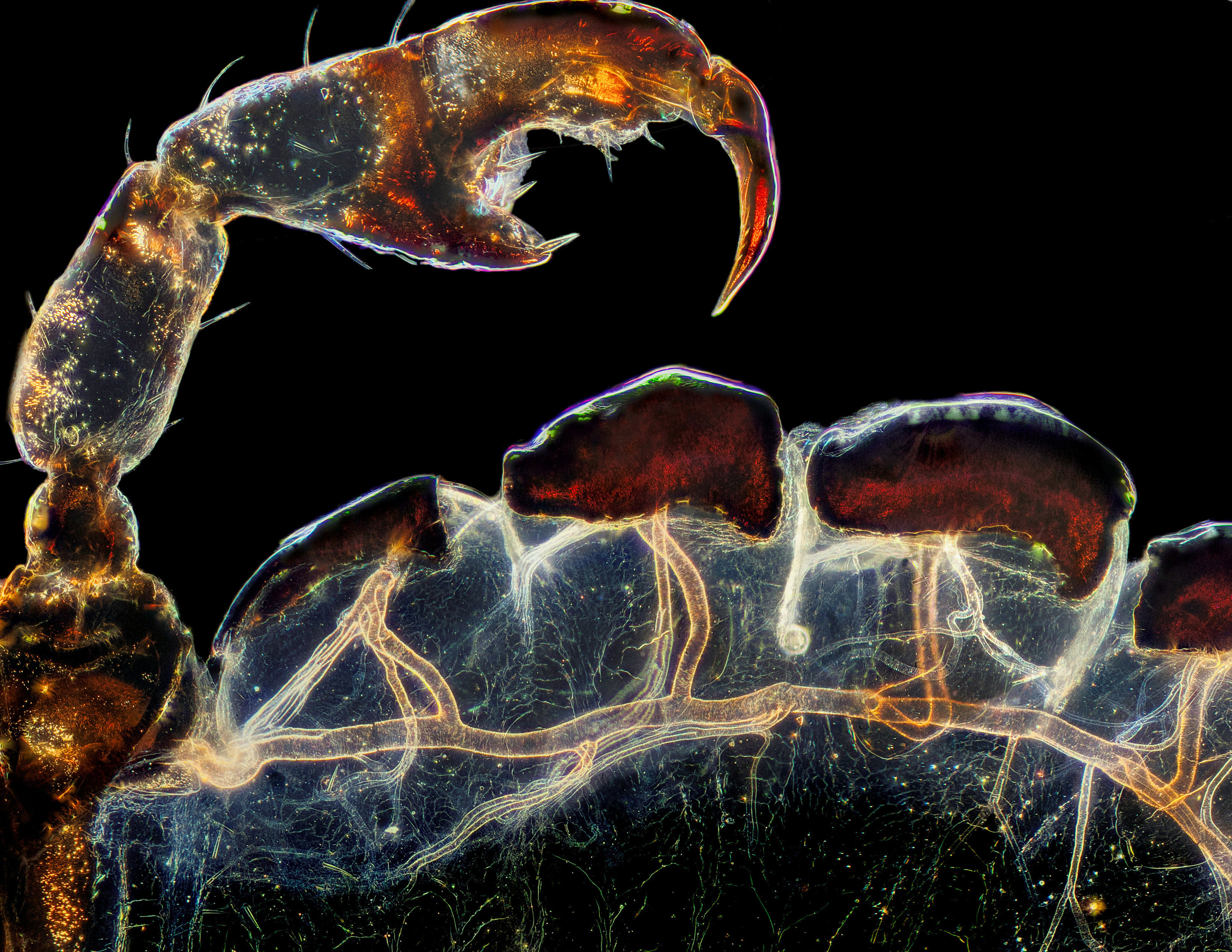 A claw of a small crab louse that has been magnified many times