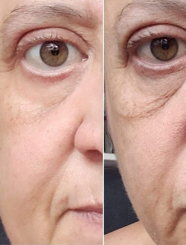 Reviewer before and after showing the cream tightened and brightened their under-eye area