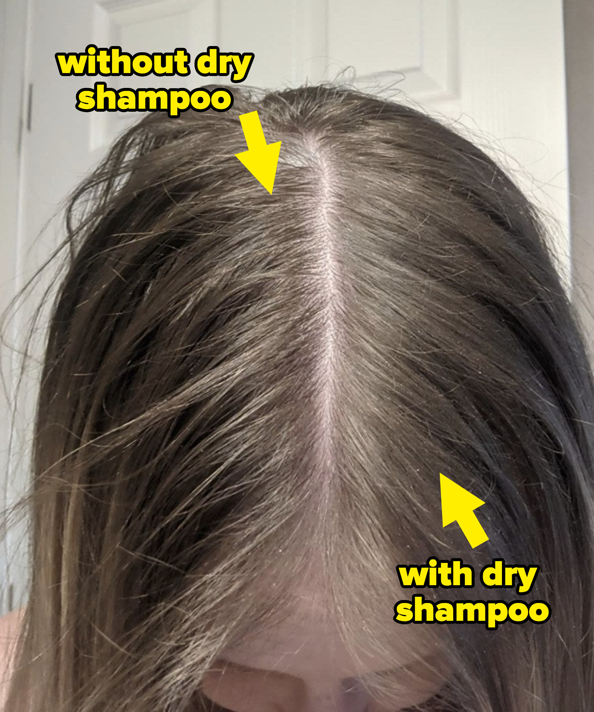 reviewer showing the left part of their hair without the dry shampoo, and the right with dry shampoo, revealing it looks less tangled and less greasy