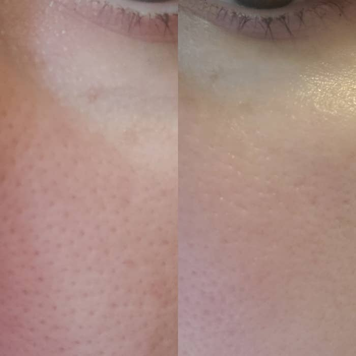 A reviewer showing their pores being blurred after using the primer