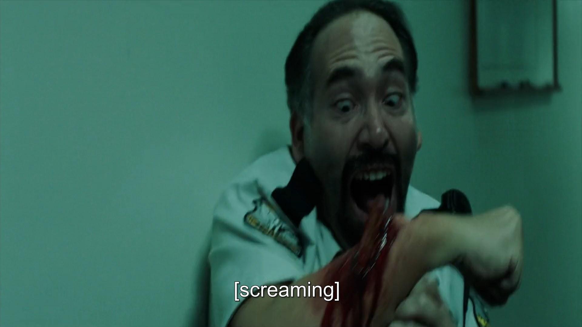 A man screams at his broken arm bone sticking out