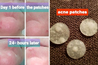 a before and after photo for acne patches showing how they made zits smaller and absorbed pus
