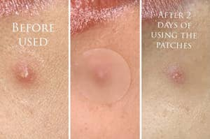 a series of photos showing a reviewer's pimple going down with use of the pimple patch