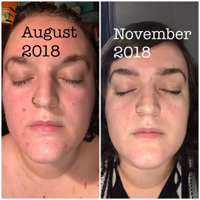 before photo of a reviewer with red and irritated-looking skin, and an after photo of the same person three months later and their skin looks glowier and less red