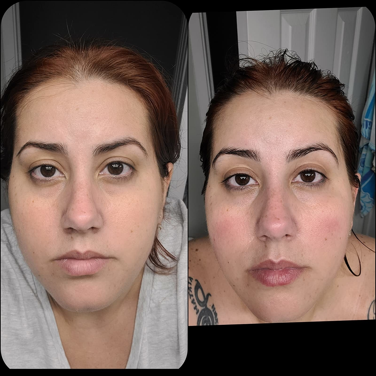 before photo of a reviewer with redness and irritation on their cheeks and some oiliness all over next to an after photo of the same reviewer and their skin has a more even texture