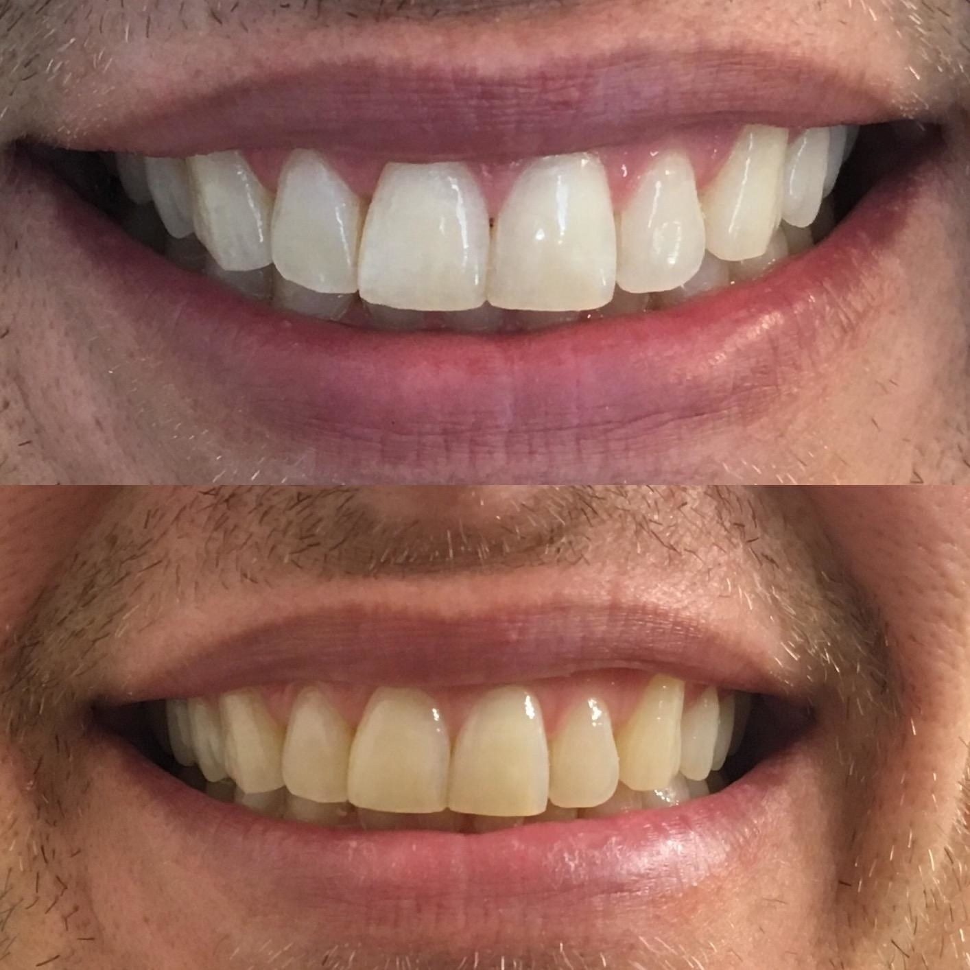 reviewer photo of a before photo with yellow teeth and an after photo with white teeth having used the whitening strips
