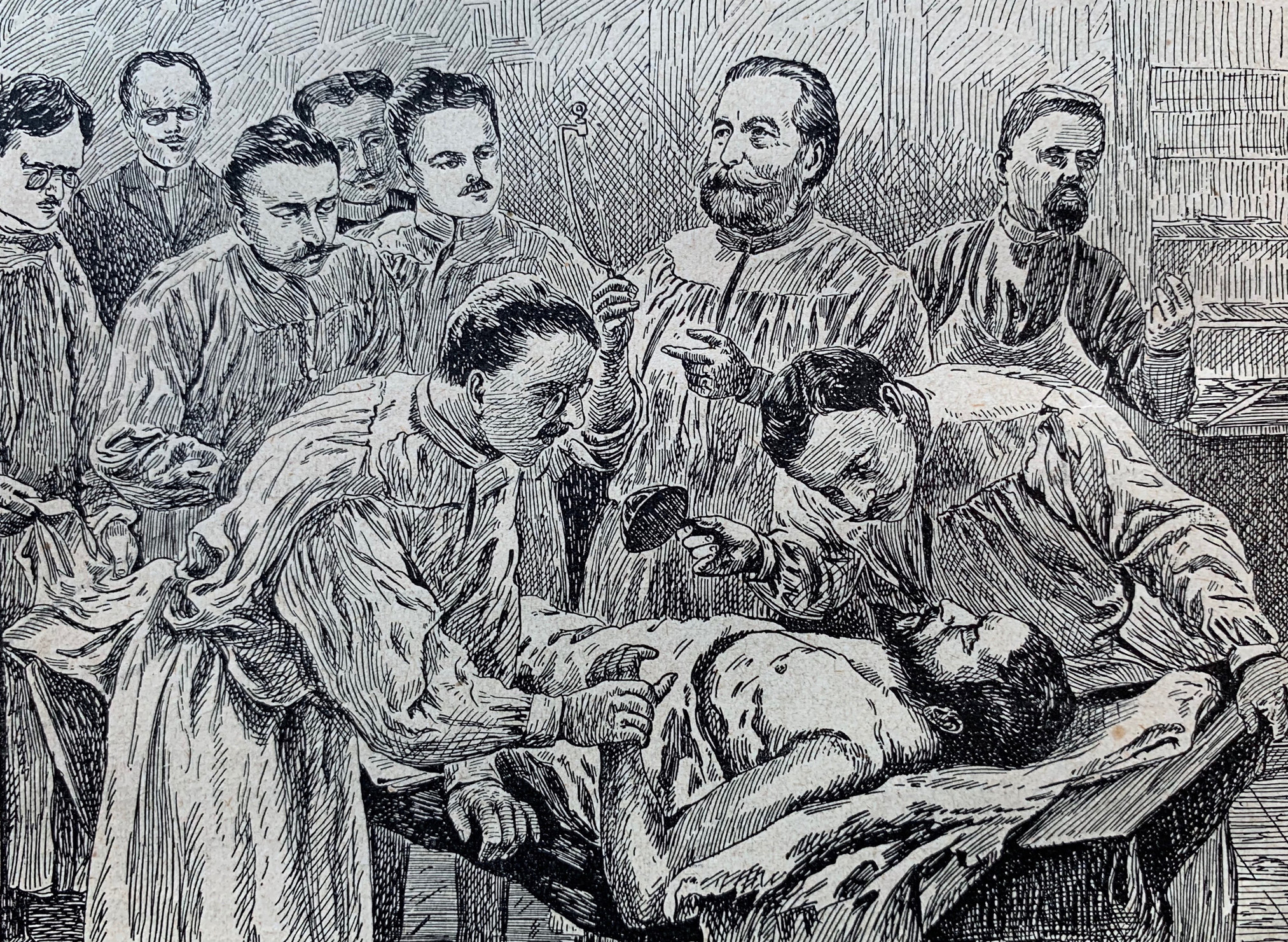 the illustration of a 19th-century surgery