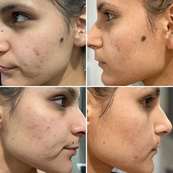 reviewer's before-and-after picture of their acne clearing
