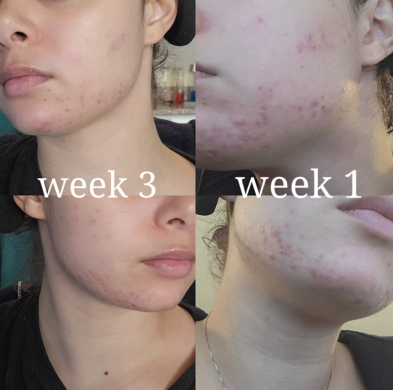 person showing visible acne on face and then significantly lightened scarring