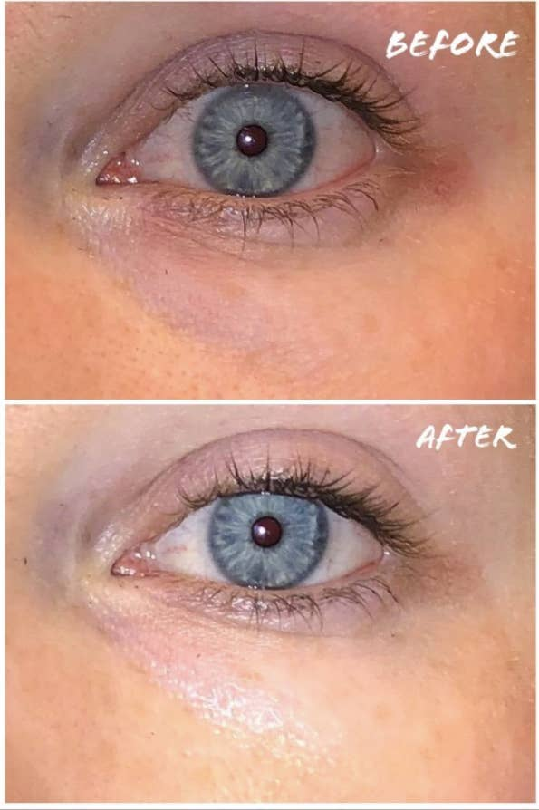 reviewer's before pic of red and inflamed undereyes and then