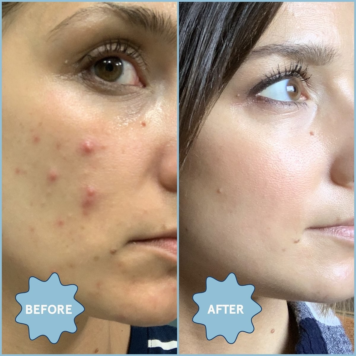 before and after pic of person with pimple and then clear skin