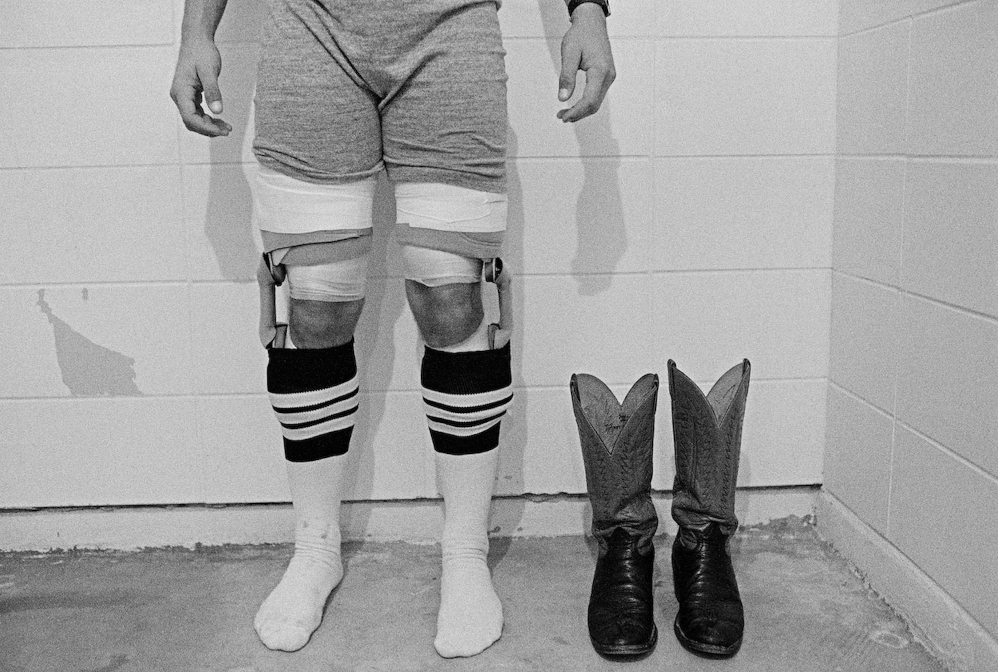 Black-and-white photo showing man's legs with socks and knee braces and his shoes next to him