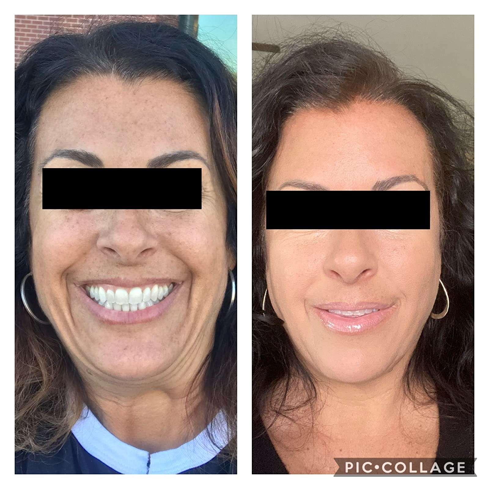 before photo of a reviewer with light discoloration and dark spots next to an after photo of the same reviewer and many of their dark spots are gone to reveal a smoother, more glowy complexion