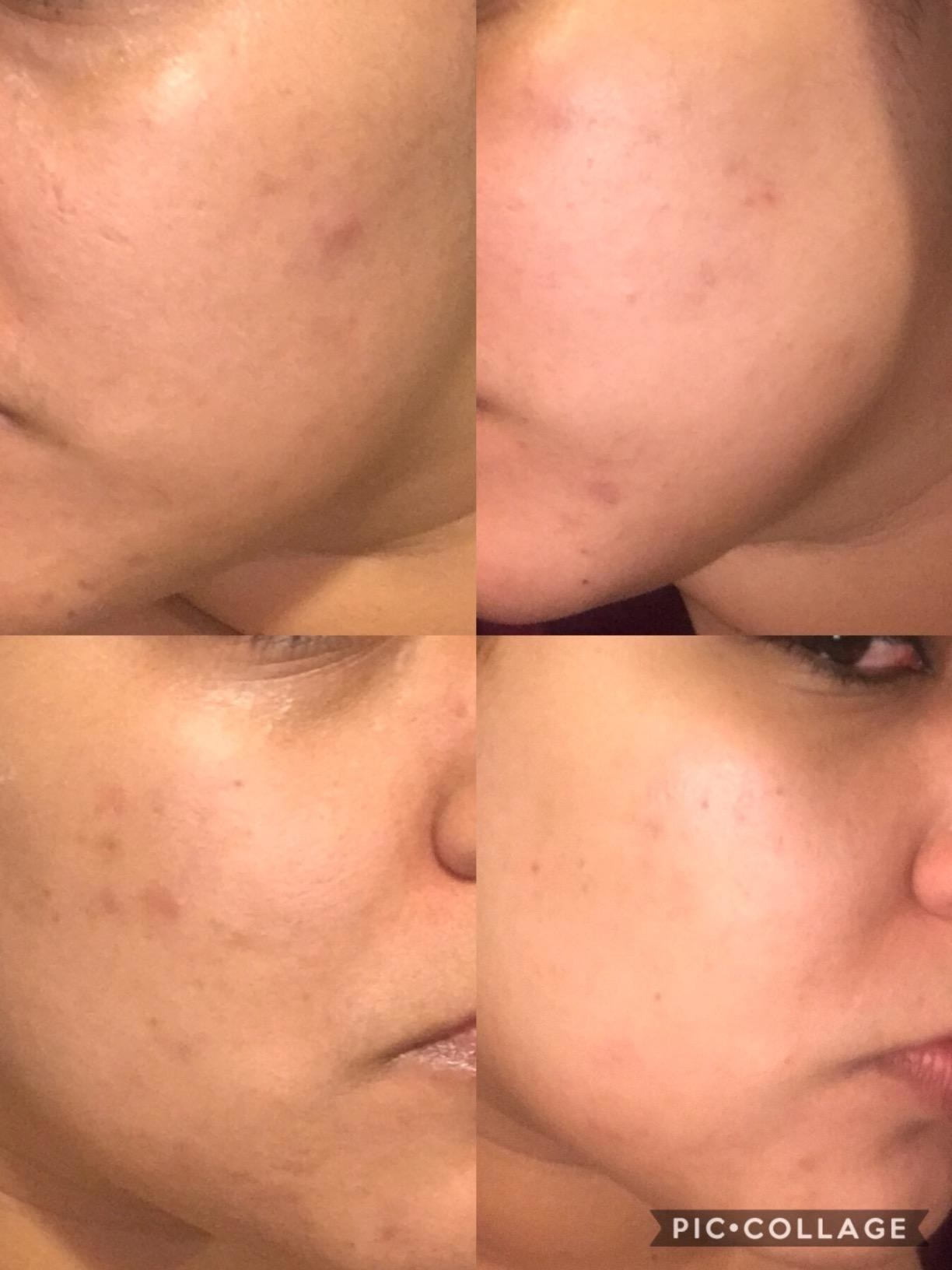 before and after showing the vitamin c helped significantly fade reviewer's hyperpigmentation on their cheek