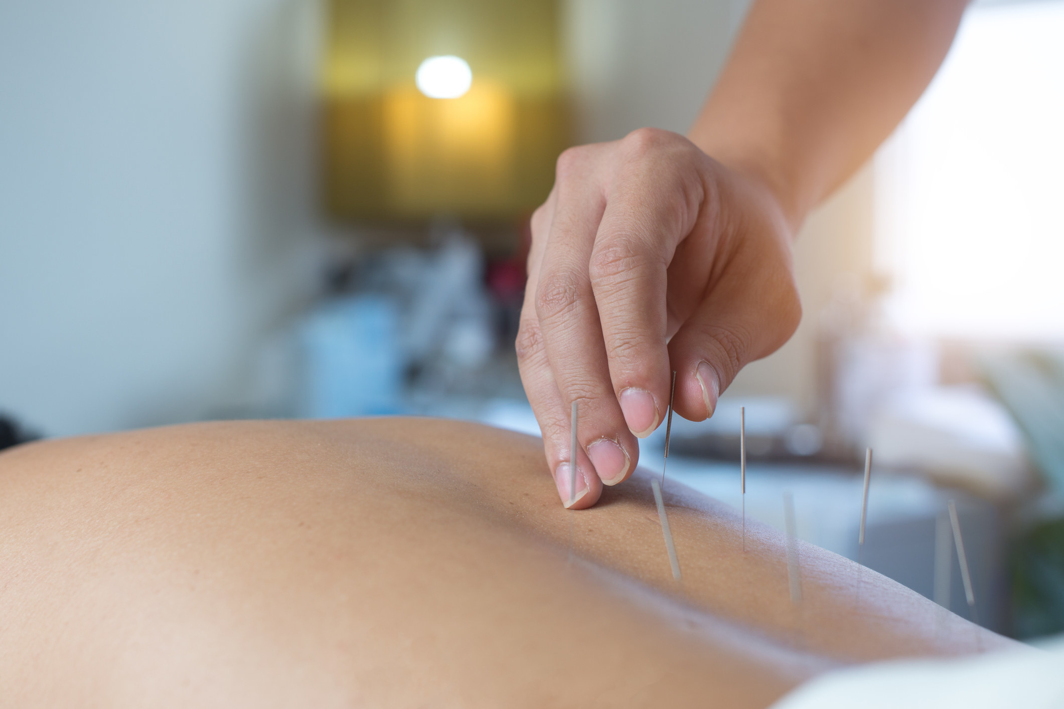 An image of needles being inserted during acupunture
