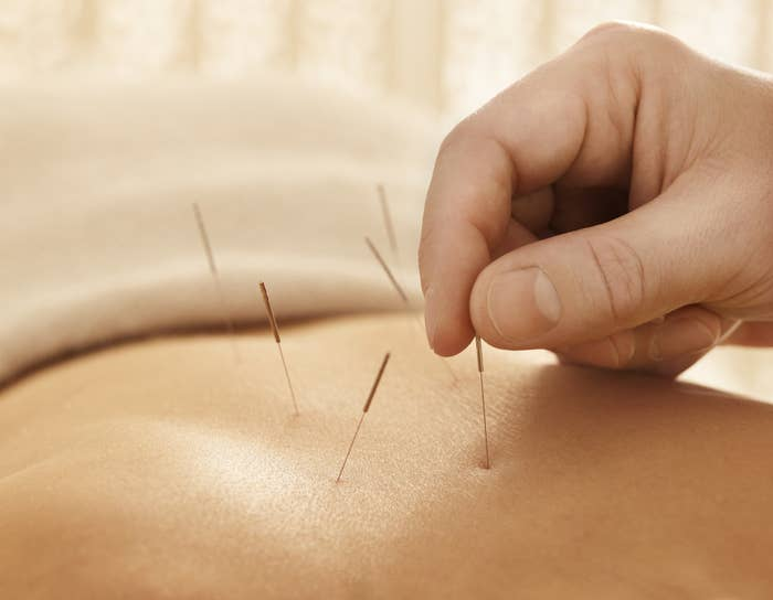 A stock image of acupuncture