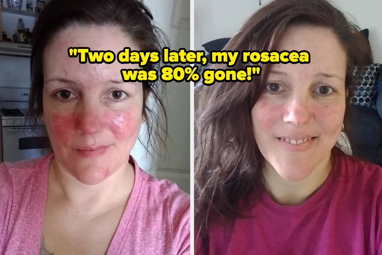 30 Skincare Products Reviewers Say Started Working In Two Weeks Or Less