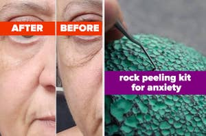 L: before and after photo showing an eye cream tightened and brightened a users under-eye bags significantly R: pick tool peeling paint from a rock