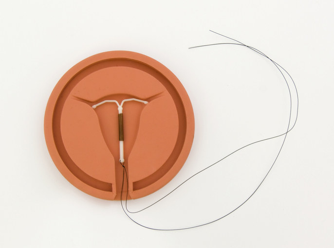 An inserted IUD