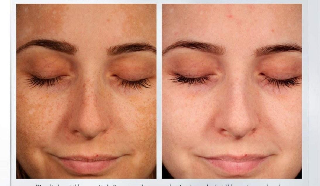 Comparación antes y después de usar corrector anti manchas
