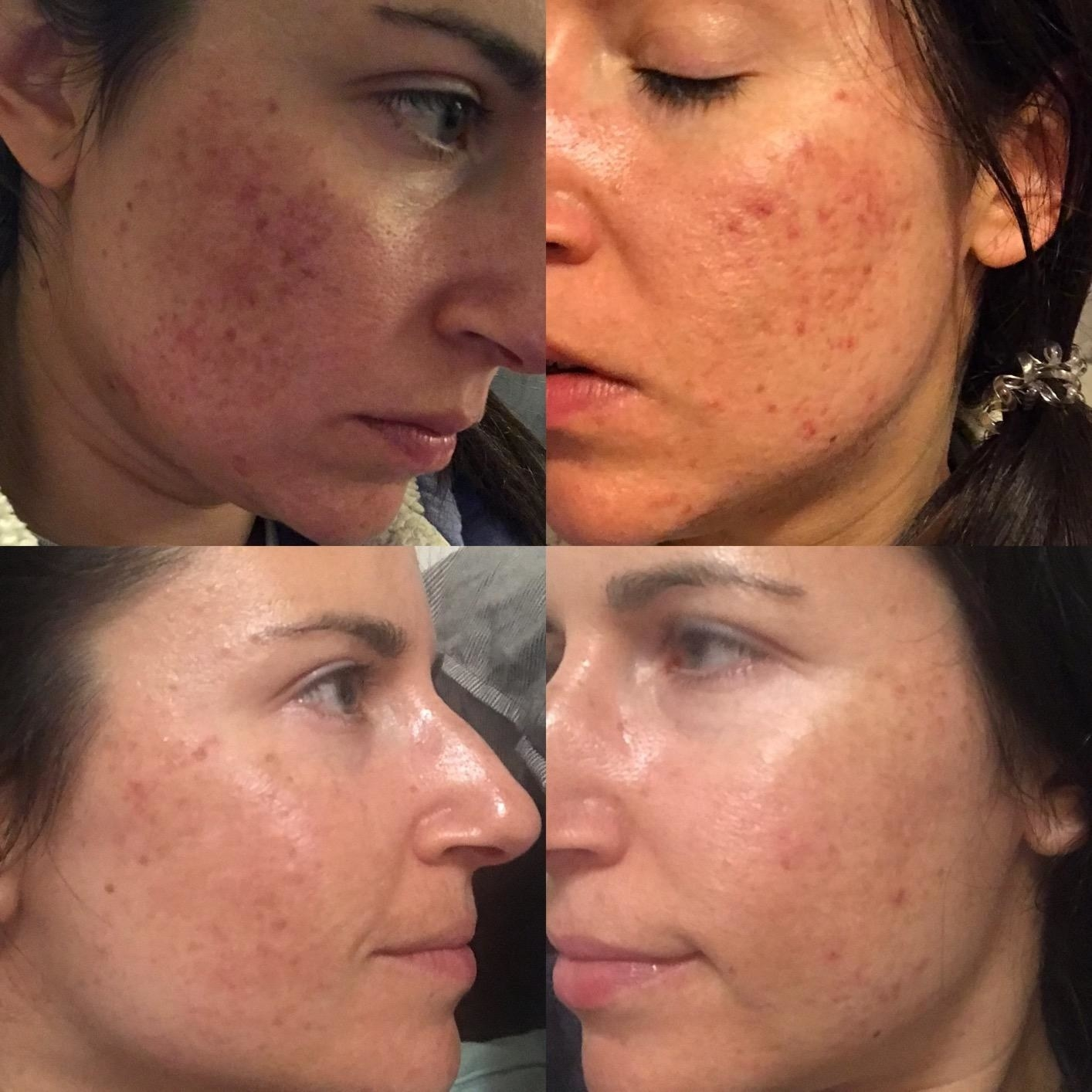 reviewer image of two before pictures with acne spots and red bumps and two after images with clear skin on the cheeks after using the products