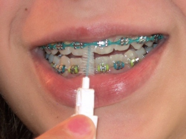17 Ways Braces Completely Ruin Eating