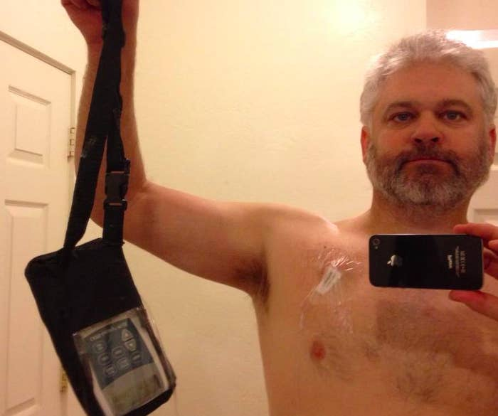 Fahey with his chemo pump.