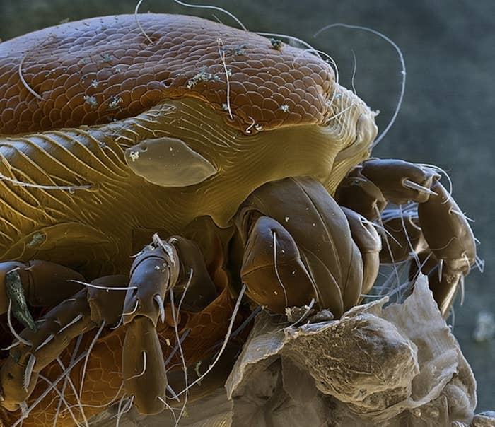 26 things you never want to see under a microscope