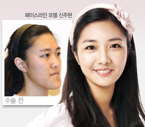 Best Places In The World To Have Plastic Surgery: 31 Crazy Before And After Photos Of Korean Plastic Surgery