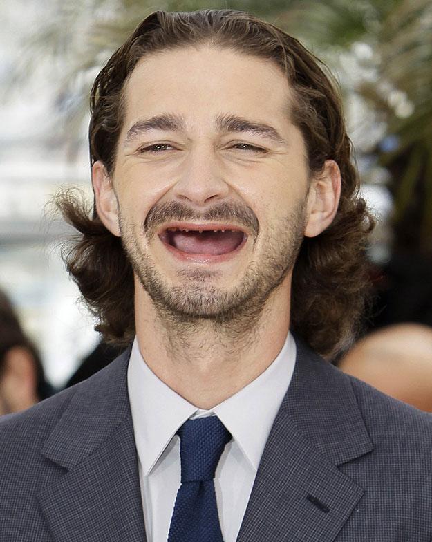 16 Actors With No Teeth