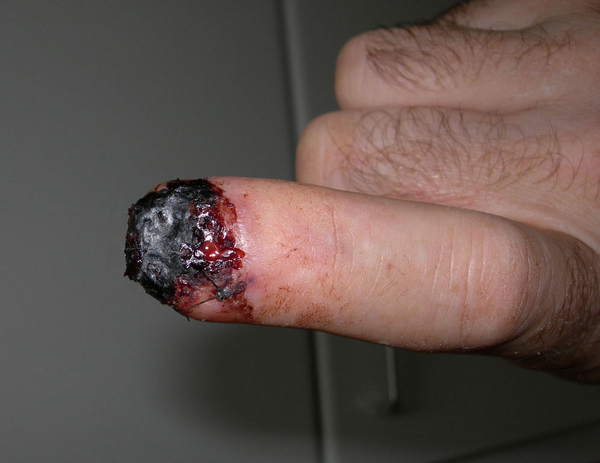 Finger Accident