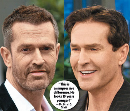 Rupert Everett's Horrifying Facelift