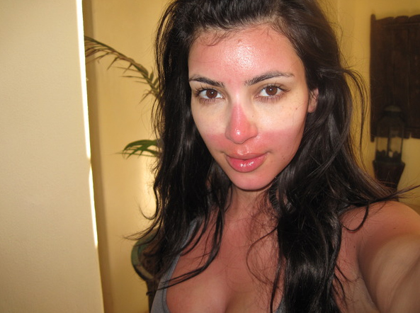 Kim Kardashian Gets Burnt