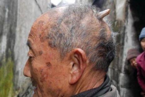 Man Grows Horn On Head