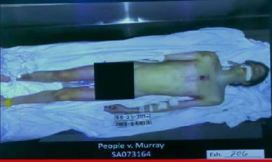 Another Picture Of Michael Jackson's Dead Body