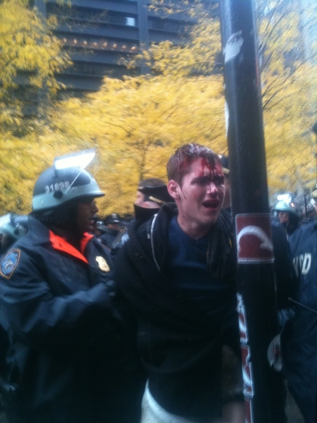 Bleeding Protester At Zuccotti Park