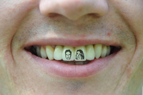 Plumber Gets William And Kate's Faces Tattooed On His TEETH
