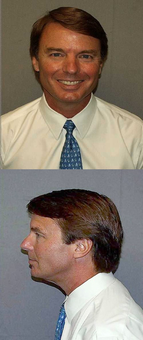 John Edwards Bizarre Mug Shot
