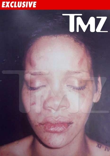First Look at Rihanna's Injuries