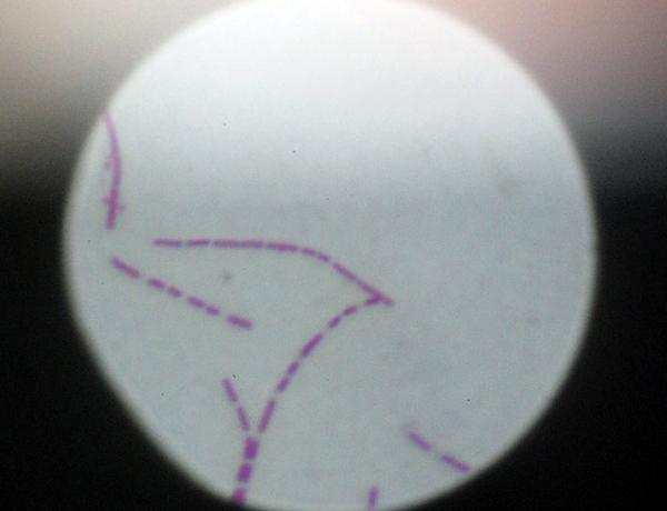 Deadly Anthrax Virus Stolen from Dublin Gallery