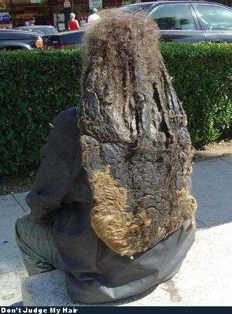 Nastiest Dreadlocks Ever