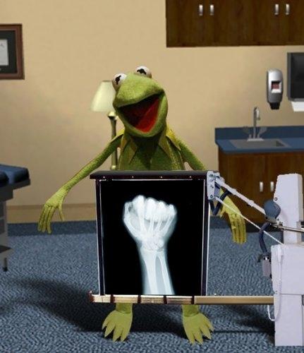 Kermit's X-ray