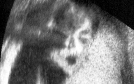 Michael Jackson's Face in Baby Scan